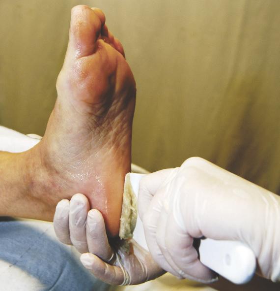 Švýcarská přírodní pedikúra-ostranění kůže